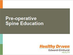 preoperative-spine-education
