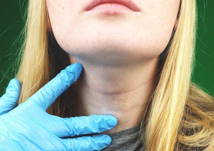 Hypothyroidism Increases Hair Breakage & Loss of Hair   TopTenHairCare.net