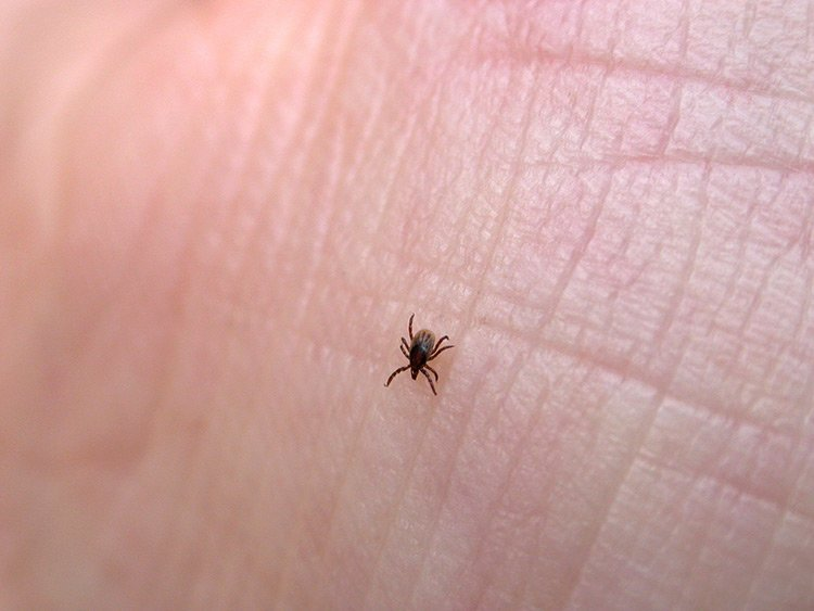 Know The Signs Of Lyme Disease Edward Elmhurst Health
